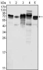 Metadherin Antibody (MA5-15564) in Western Blot