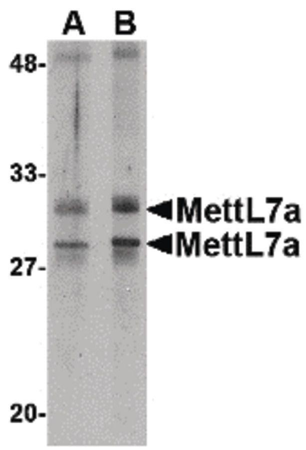 METTL7A Antibody (PA5-20636) in Western Blot
