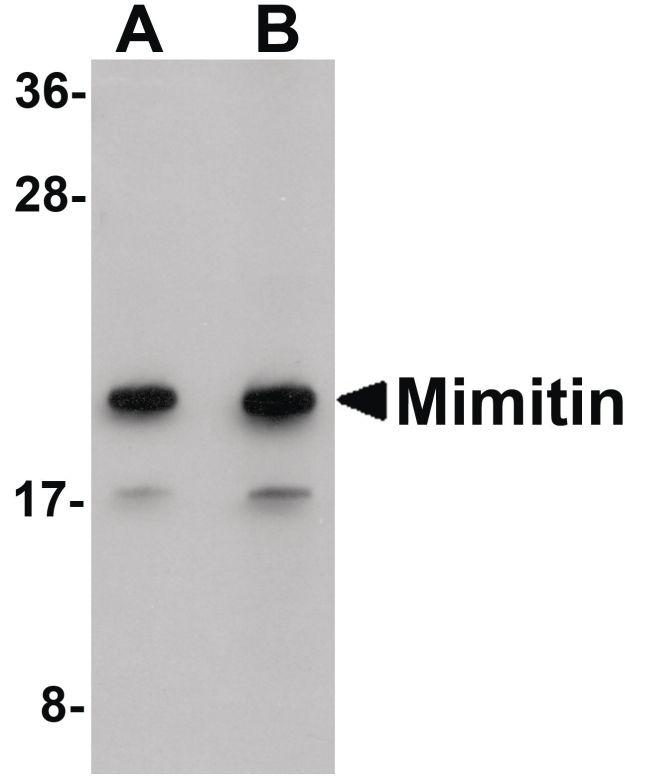 NDUFAF2 Antibody (PA5-20831) in Western Blot