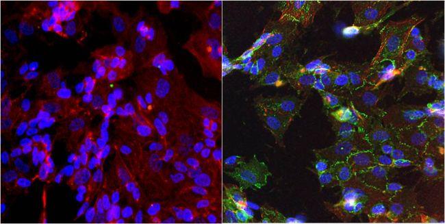 N-cadherin Antibody (MA1-2002) in Immunofluorescence