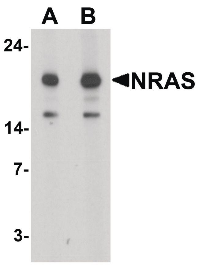 N-Ras Antibody (PA5-34560)