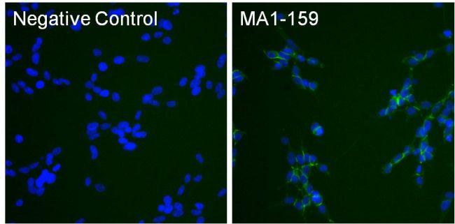 N-cadherin Antibody (MA1-159) in Immunofluorescence