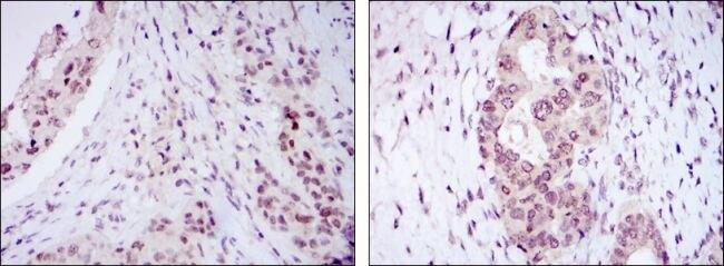 NAC1 Antibody (MA5-15727)