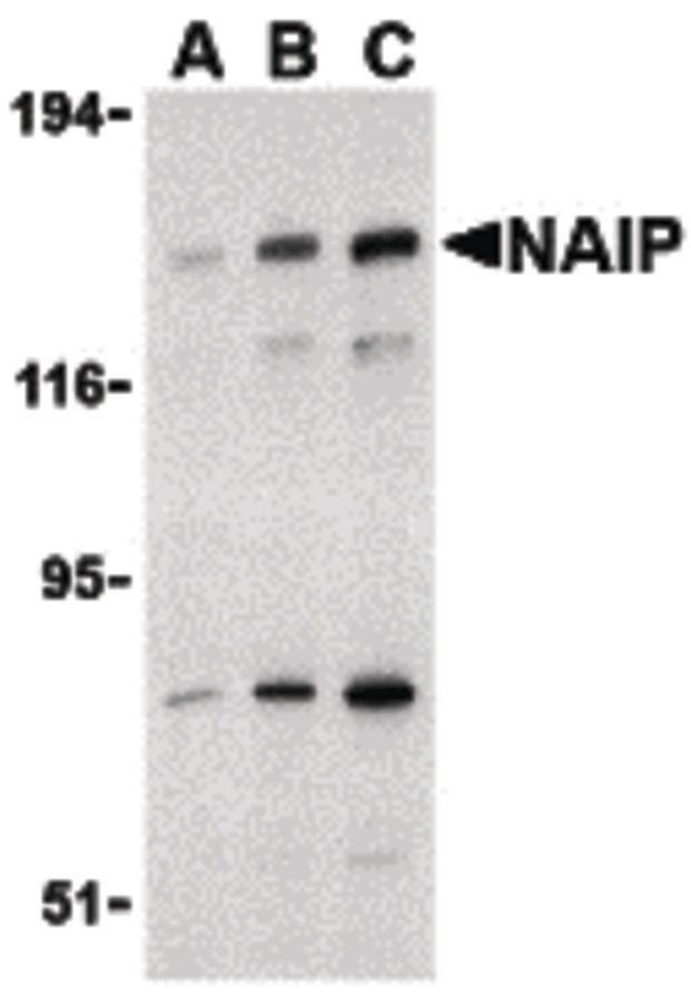 NAIP Antibody (PA5-20063) in Western Blot