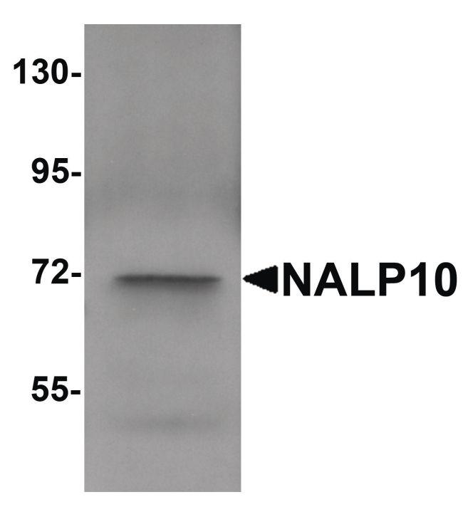 NALP10 Antibody (PA5-21025) in Western Blot