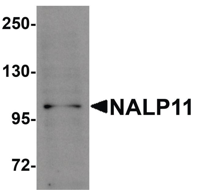 NALP11 Antibody (PA5-21026) in Western Blot