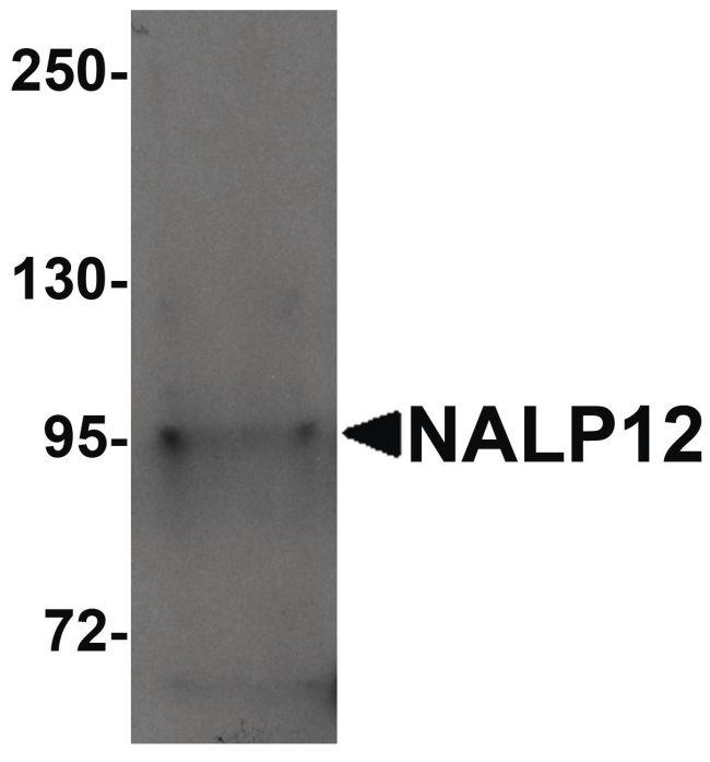 NALP12 Antibody (PA5-21027) in Western Blot