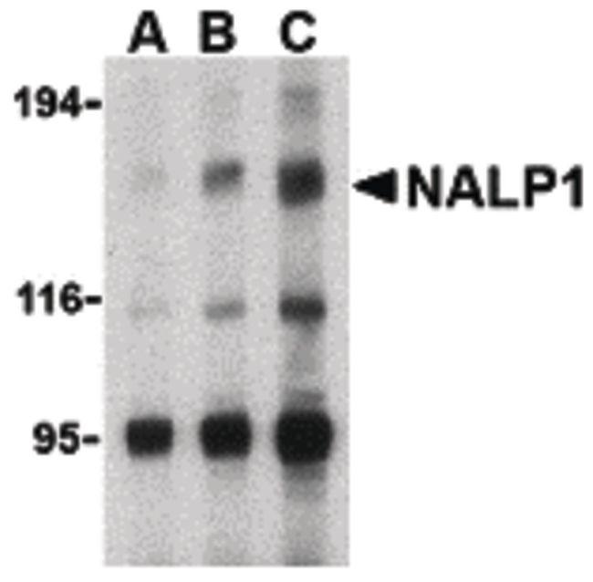 NALP1 Antibody (PA5-20005) in Western Blot