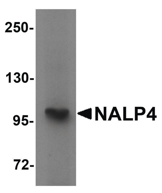 NALP4 Antibody (PA5-21020) in Western Blot