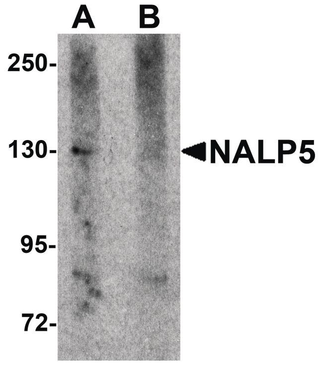 NALP5 Antibody (PA5-21021) in Western Blot
