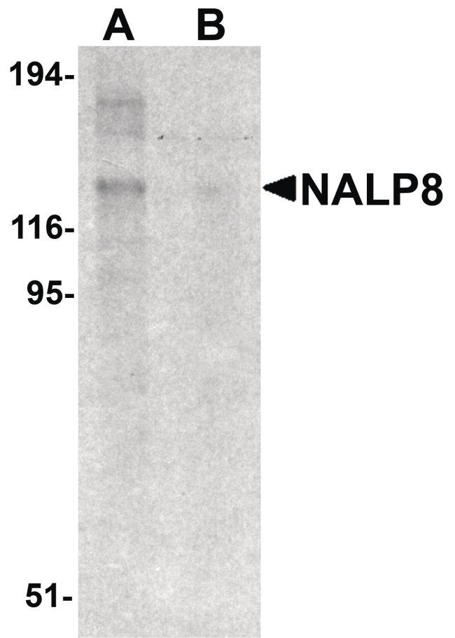 NALP8 Antibody (PA5-21024)