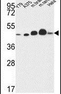 NDUFS2 Antibody (PA5-26772) in Western Blot