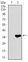 NEFH Antibody (MA5-17134) in Western Blot