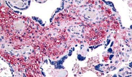 NET1 Antibody (PA5-33965)