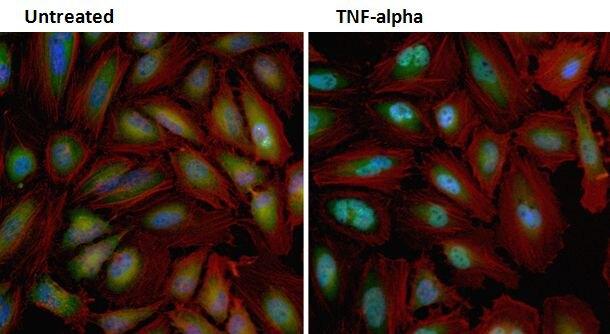 NFkB p65 Antibody (PA5-16545)