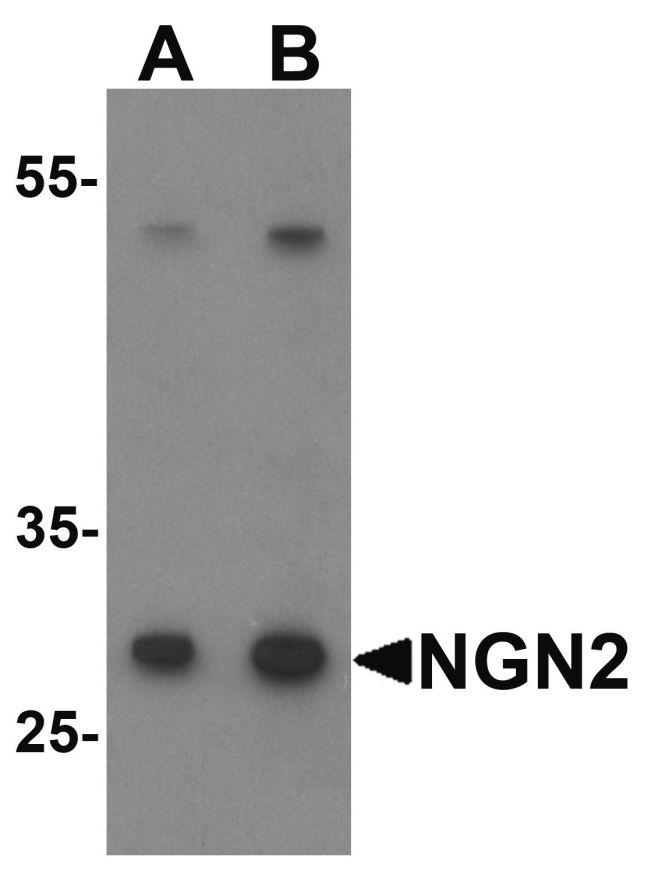 NeuroG2 Antibody (PA5-34472) in Western Blot