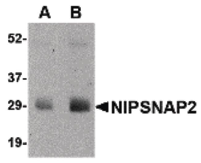 GBAS Antibody (PA5-20655) in Western Blot