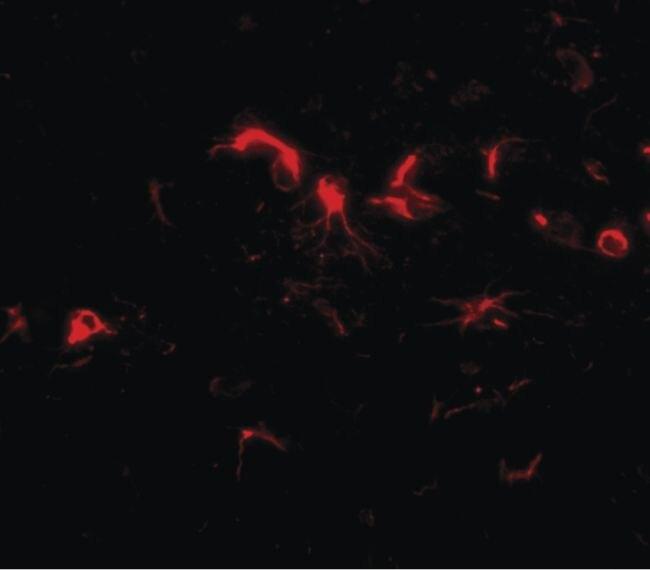 NIPSNAP3B Antibody (PA5-20658)