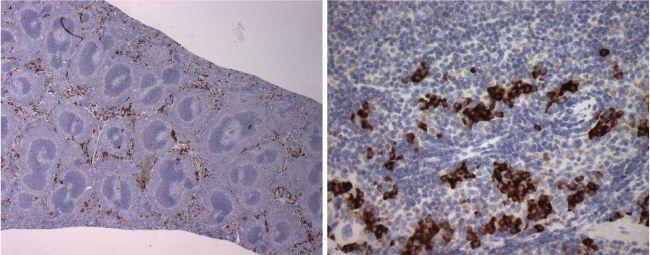 NK Cells Antibody (MA1-70100)