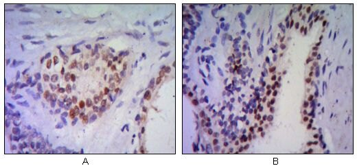 Nkx3.1 Antibody (MA5-15618) in Immunohistochemistry