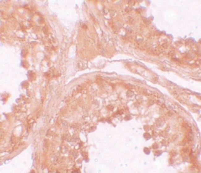 NALP9 Antibody (PA5-21019) in Immunohistochemistry