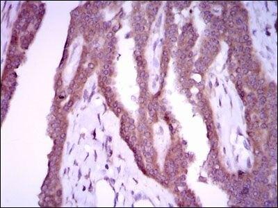 iNOS Antibody (MA5-17139) in Immunohistochemistry