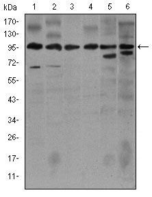 iNOS Antibody (MA5-17139) in Western Blot