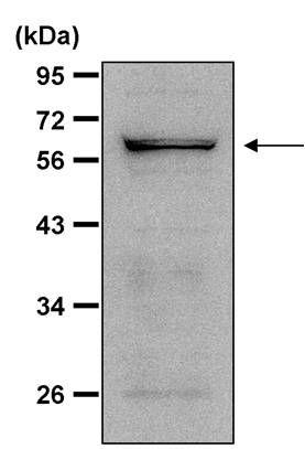 NOX4 Antibody (PA1-46014) in Western Blot