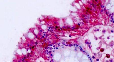 NPFF2 Antibody (PA5-33984) in Immunohistochemistry (Paraffin)