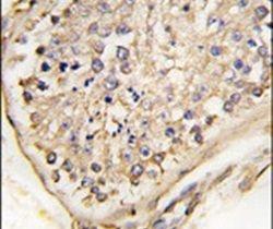 NPTX2 Antibody (PA5-12288)