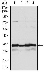 NQO1 Antibody (MA5-15927)