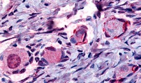 NR4A1 Antibody (PA5-32949)