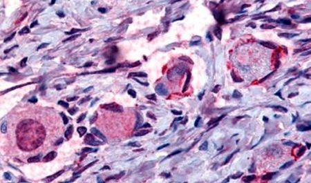 NR4A1 Antibody (PA5-32949) in Immunohistochemistry (Paraffin)