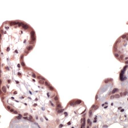 Nrf2 Antibody (PA5-32523) in Immunohistochemistry