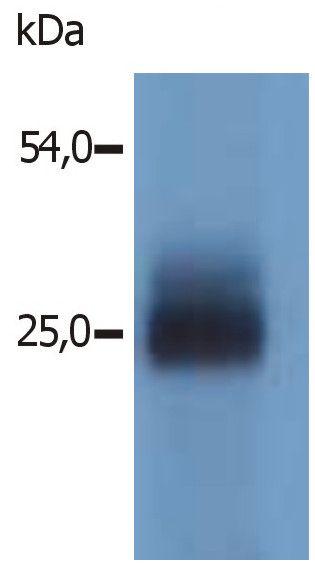 NTAL Antibody (PA1-19441)