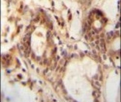 NUDT15 Antibody (PA5-24507)