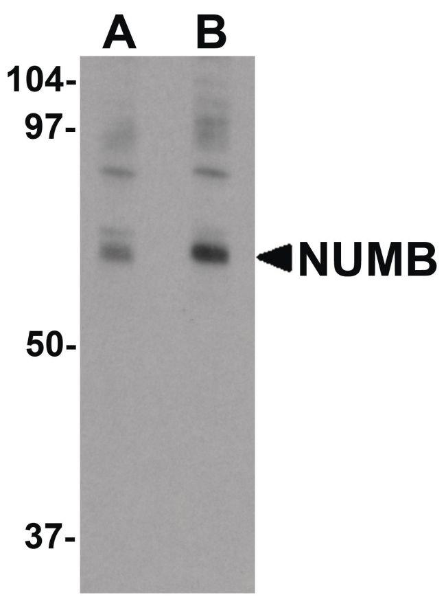 NUMB Antibody (PA5-21143) in Western Blot