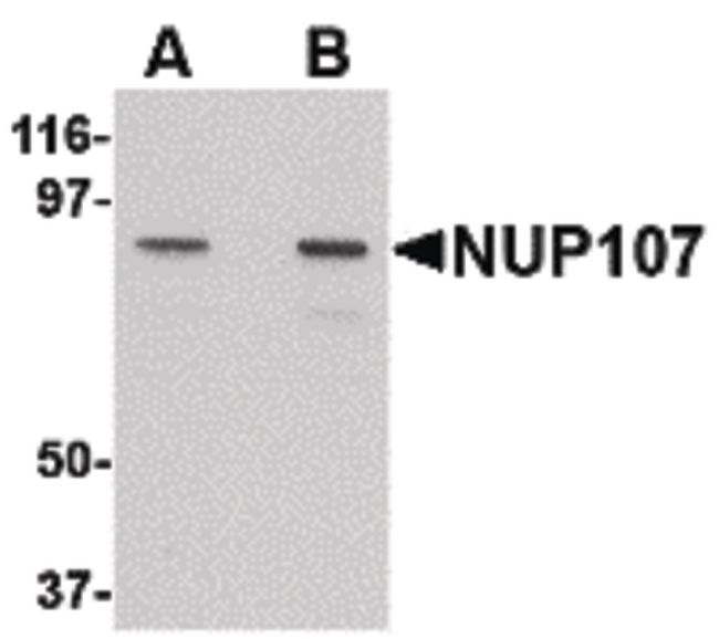 NUP107 Antibody (PA5-20563) in Western Blot