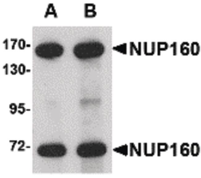 NUP160 Antibody (PA5-20565) in Western Blot