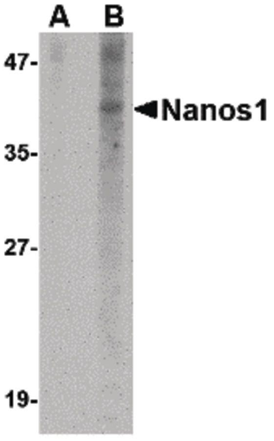 NANOS1 Antibody (PA5-20556) in Western Blot