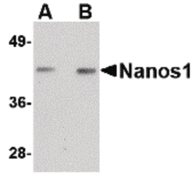 NANOS1 Antibody (PA5-20557) in Western Blot