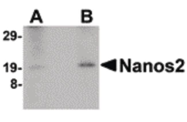 NANOS2 Antibody (PA5-20536)