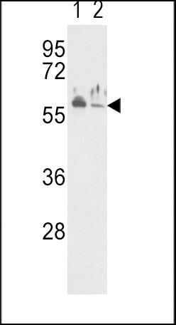 NPR3 Antibody (PA5-15394) in Western Blot