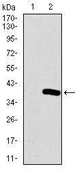 NeuroD1 Antibody (MA5-17137) in Western Blot