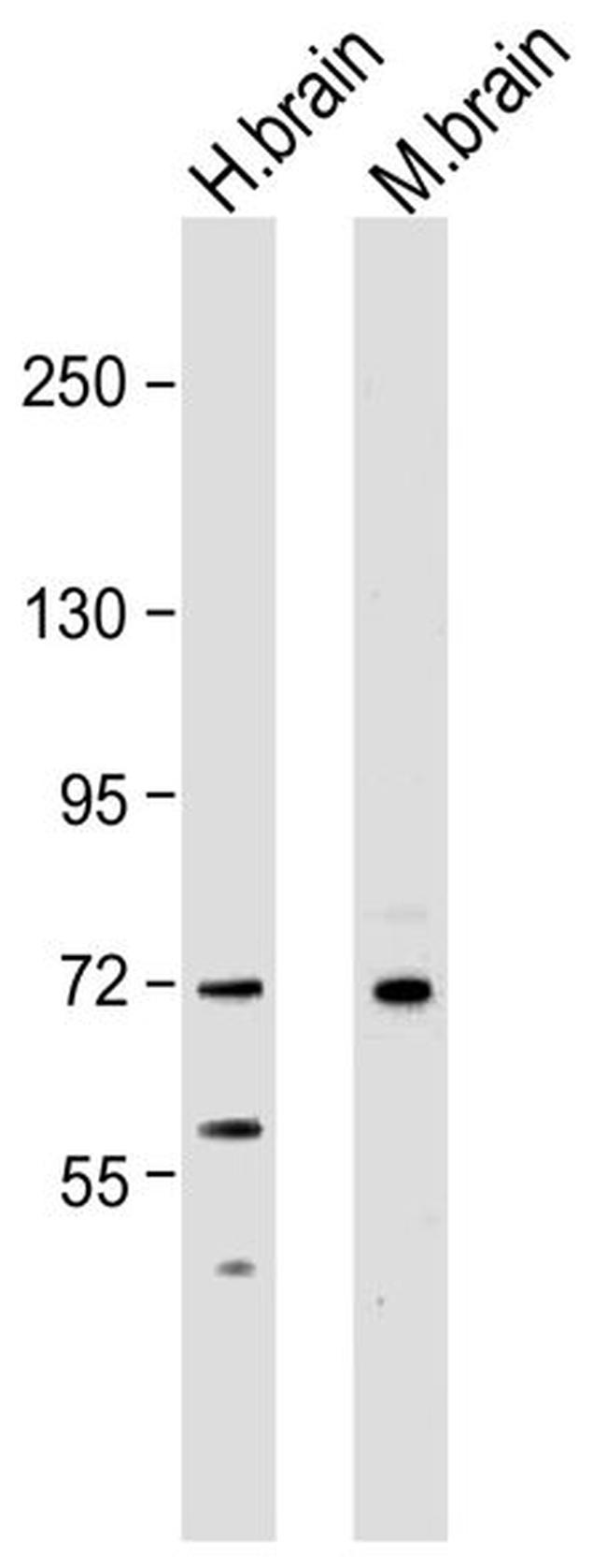 NEFL Antibody (13-0400) in Western Blot