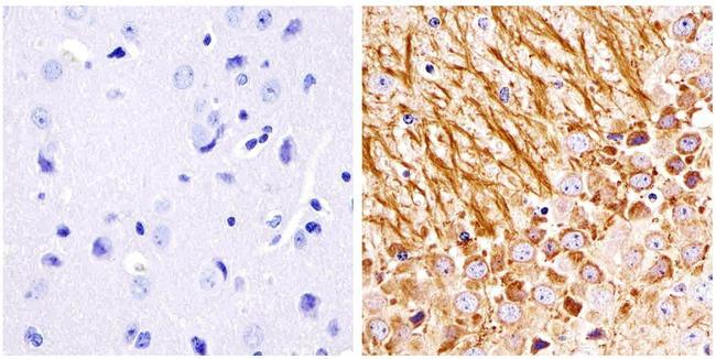 NEFM Antibody (13-0700) in Immunohistochemistry