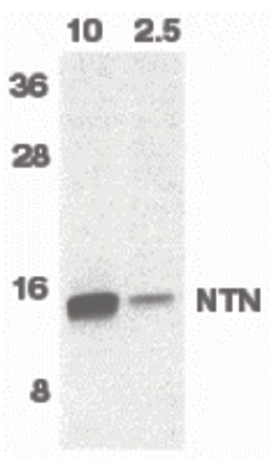 Neurturin Antibody (PA5-19867) in Western Blot