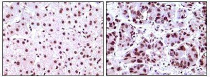 NPM1 Antibody (MA5-17141) in Immunohistochemistry