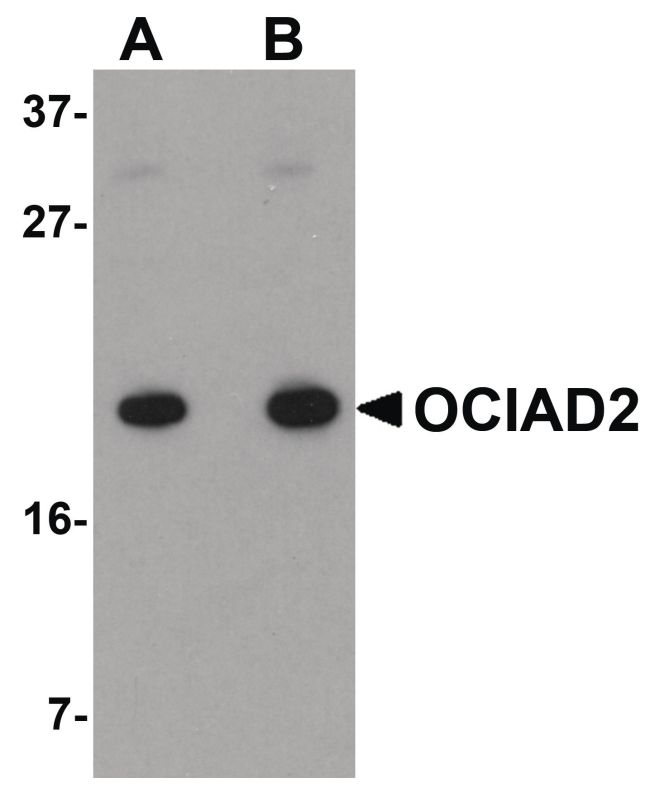 OCIAD2 Antibody (PA5-20835) in Western Blot
