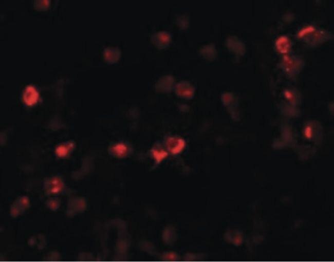 OGFOD1 Antibody (PA5-21100) in Immunofluorescence
